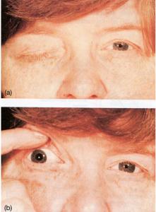 Skade på n. oculomotorius
