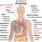 Symptomer på anæmi