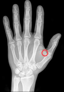 Sesamknogle ved tommelfinger