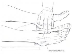 a-dorsalis-pedis-puls