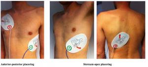 etp-elektroder