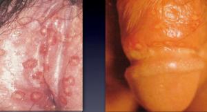 herpesgenitalis