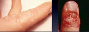 herpessimplexfingerinfektion