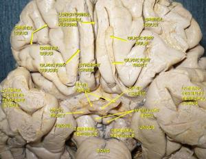 Hjernen set nedefra