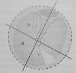 Klinisk inddeling af trommehinden i kvadranter