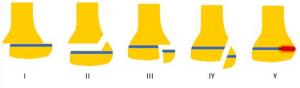 Salter & Harris klassifikation