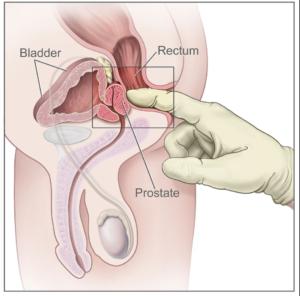 Rektaleksploration hos mænd